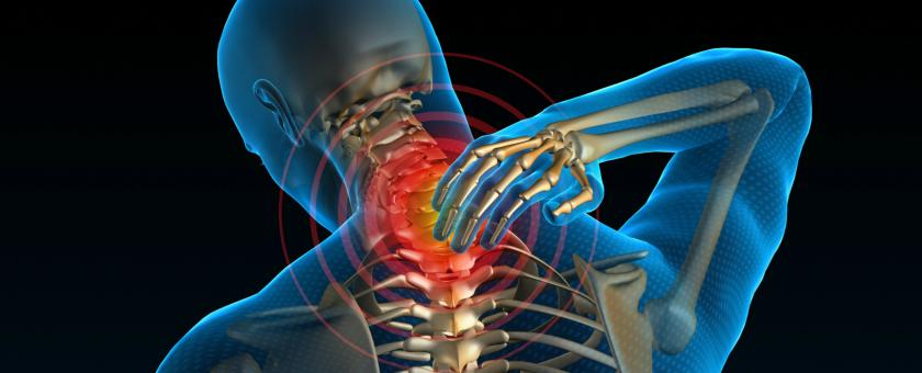 Illustration of neuropathic pain caused by the spine.